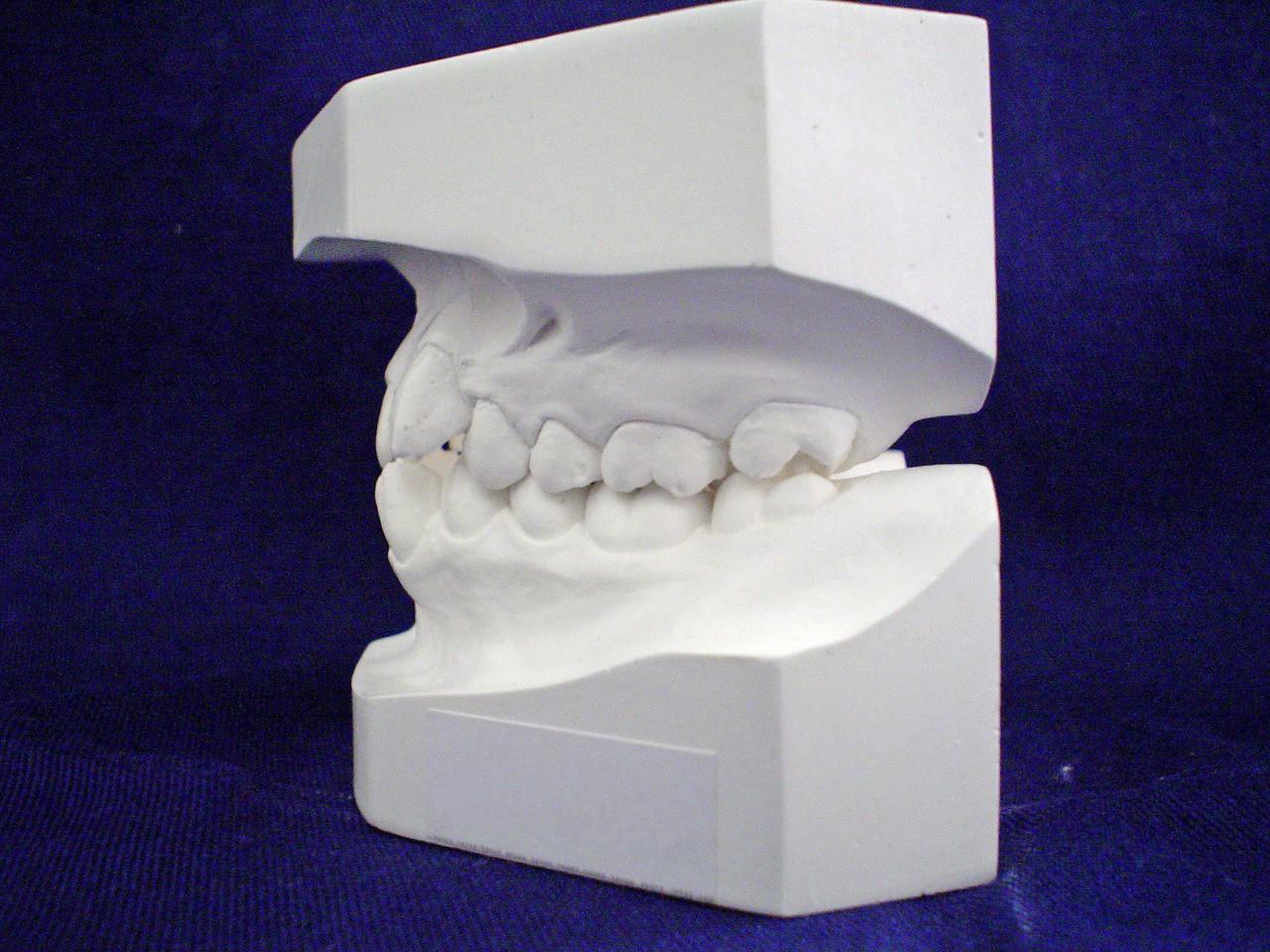 Jak dbać o szczoteczkę do zębów?