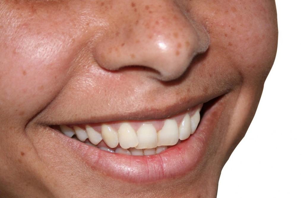 Jak nie korzystać ze szczoteczki do zębów?